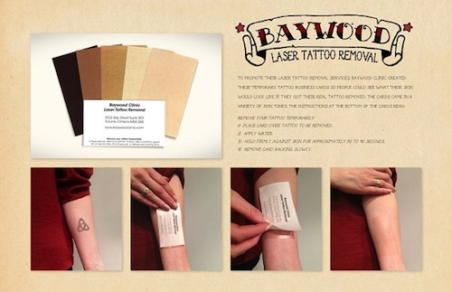 tattoo-remover-card