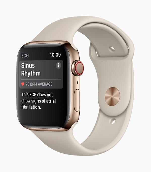 Apple-Watch-Series4_ECG-SinusRhythm_09122018